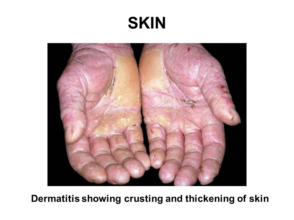 SKIN Source: HSE Dermatitis showing crusting and thickening of skin