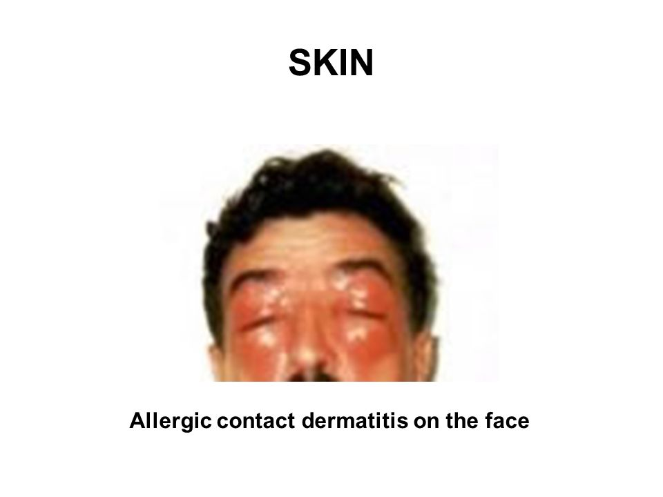 SKIN Source: HSE Allergic contact dermatitis on the face
