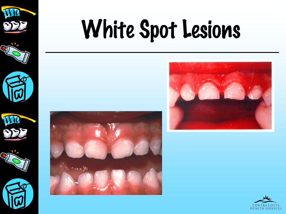Presentation for Peds March 25, 2017 White Spot Lesions
