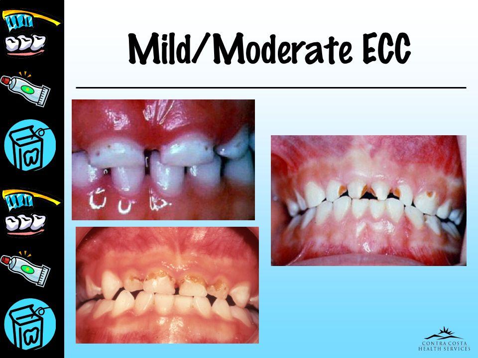 Presentation for Peds March 25, 2017 Mild/Moderate ECC