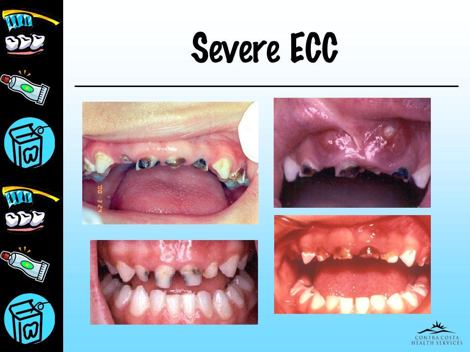 Presentation for Peds March 25, 2017 Severe ECC