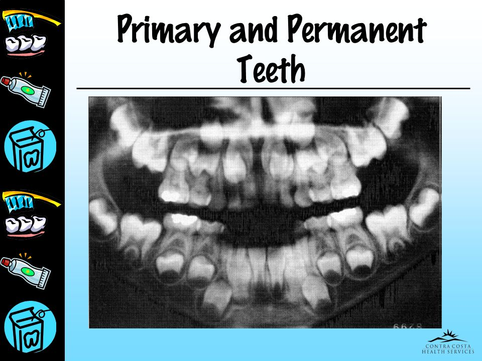 Primary and Permanent Teeth