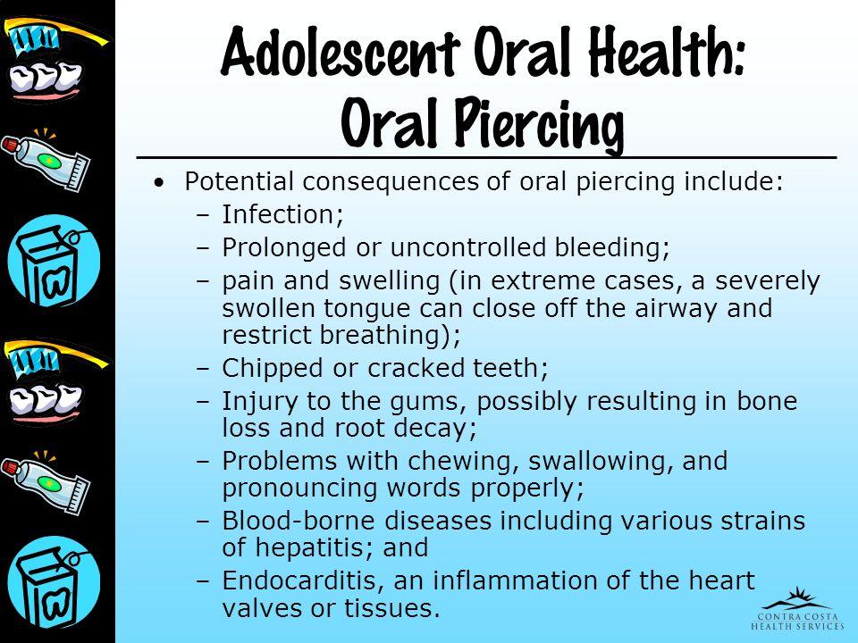 Adolescent Oral Health: Oral Piercing
