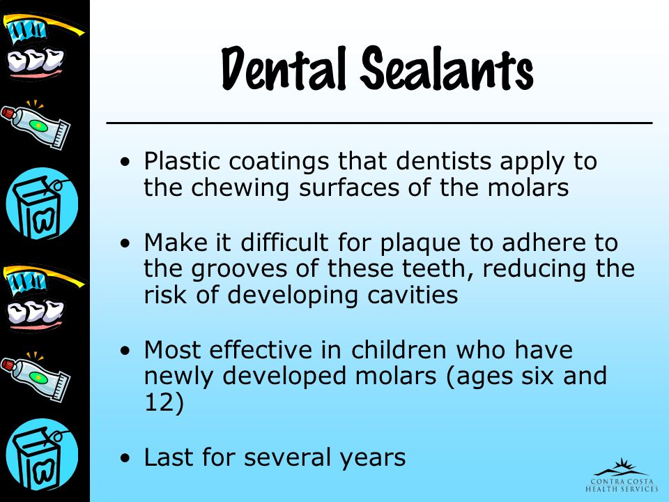 Dental Sealants Plastic coatings that dentists apply to the chewing surfaces of the molars.