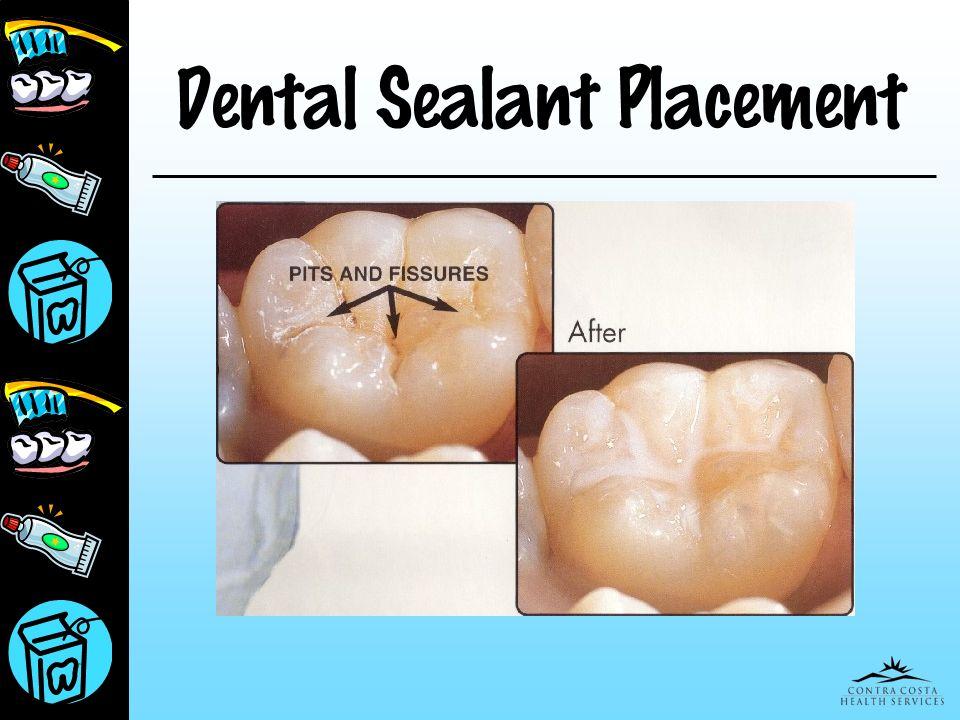Dental Sealant Placement
