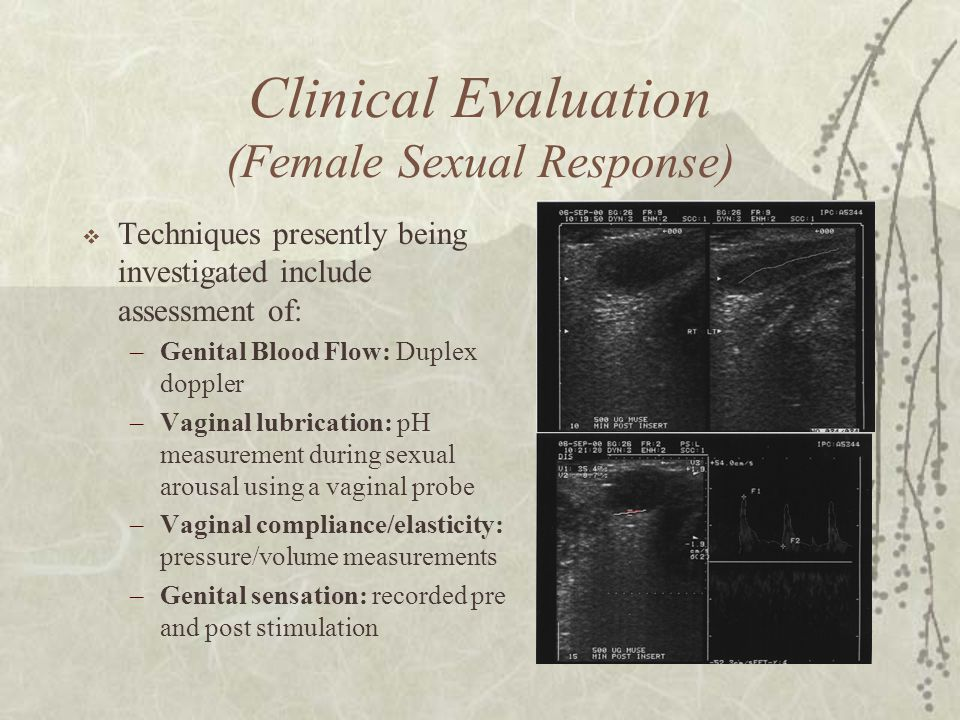Clinical Evaluation (Female Sexual Response)