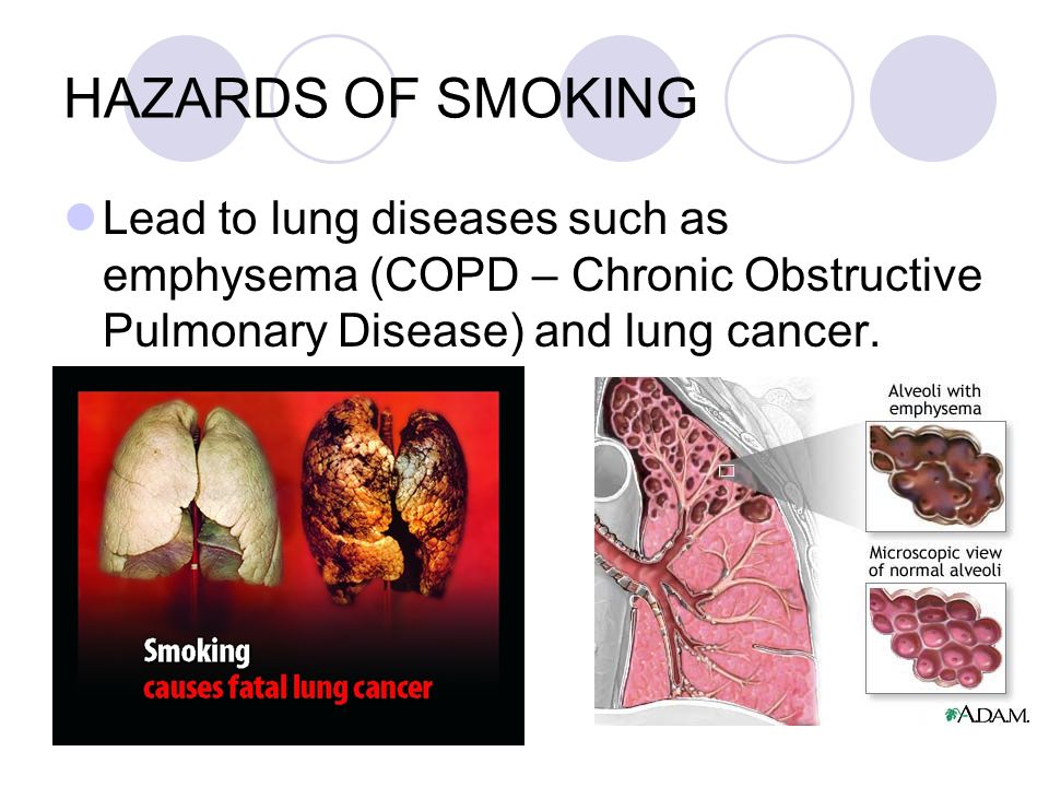 HAZARDS OF SMOKING Lead to lung diseases such as emphysema (COPD – Chronic Obstructive Pulmonary Disease) and lung cancer.