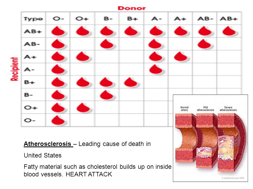 Atherosclerosis – Leading cause of death in