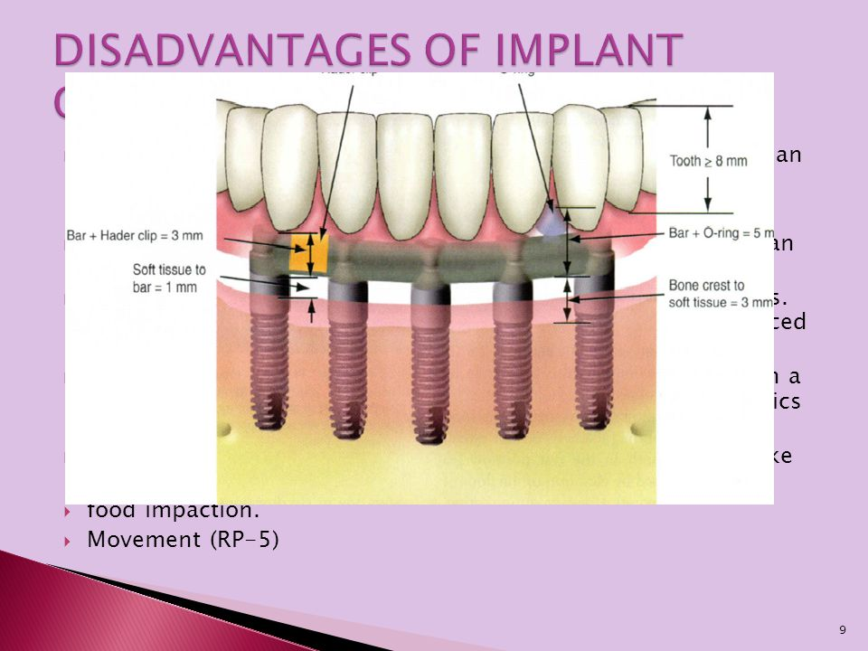 DISADVANTAGES OF IMPLANT OVERDENTURES
