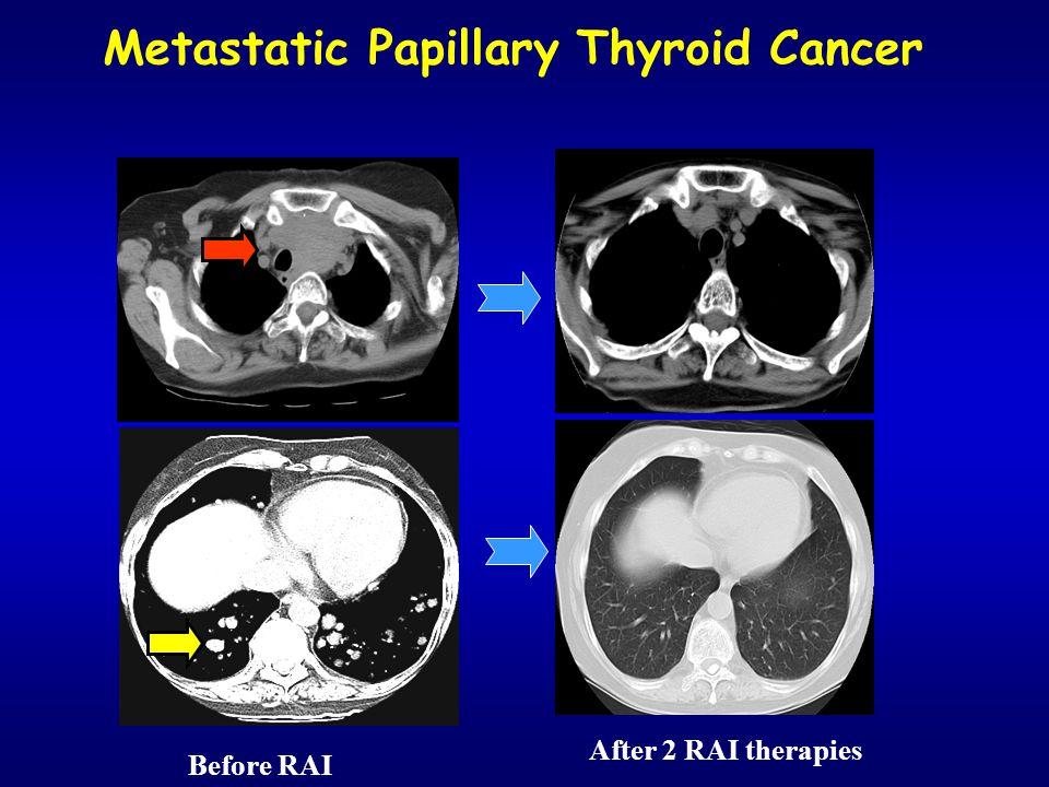 Metastatic Papillary Thyroid Cancer