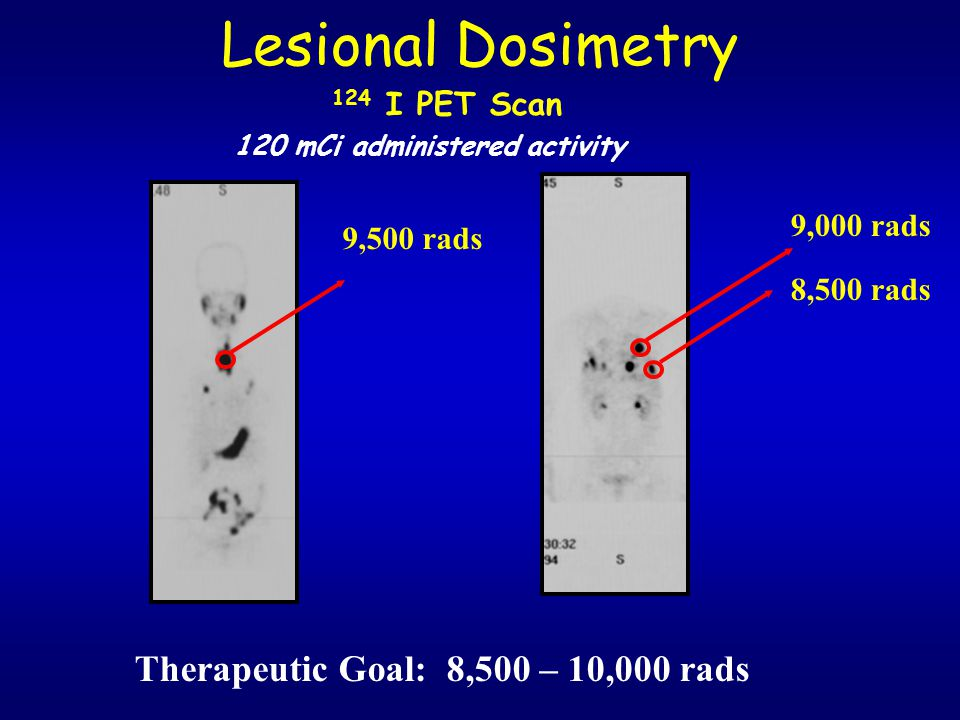 120 mCi administered activity Therapeutic Goal: 8,500 – 10,000 rads