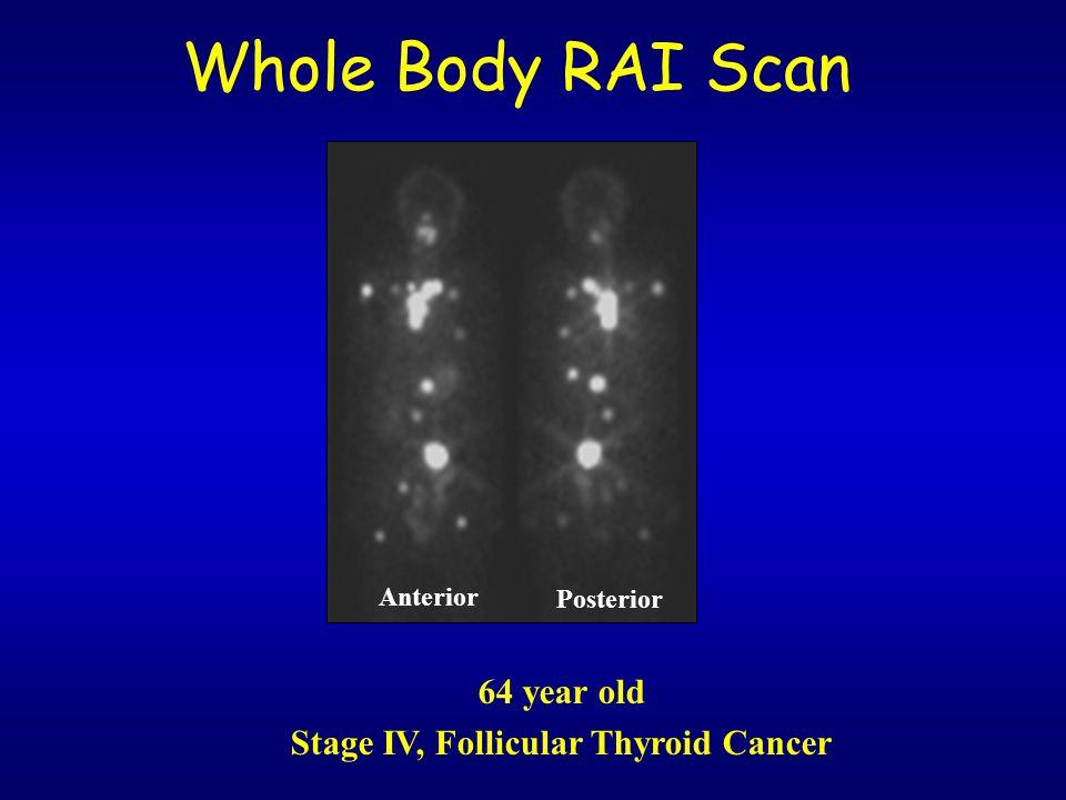 Stage IV, Follicular Thyroid Cancer