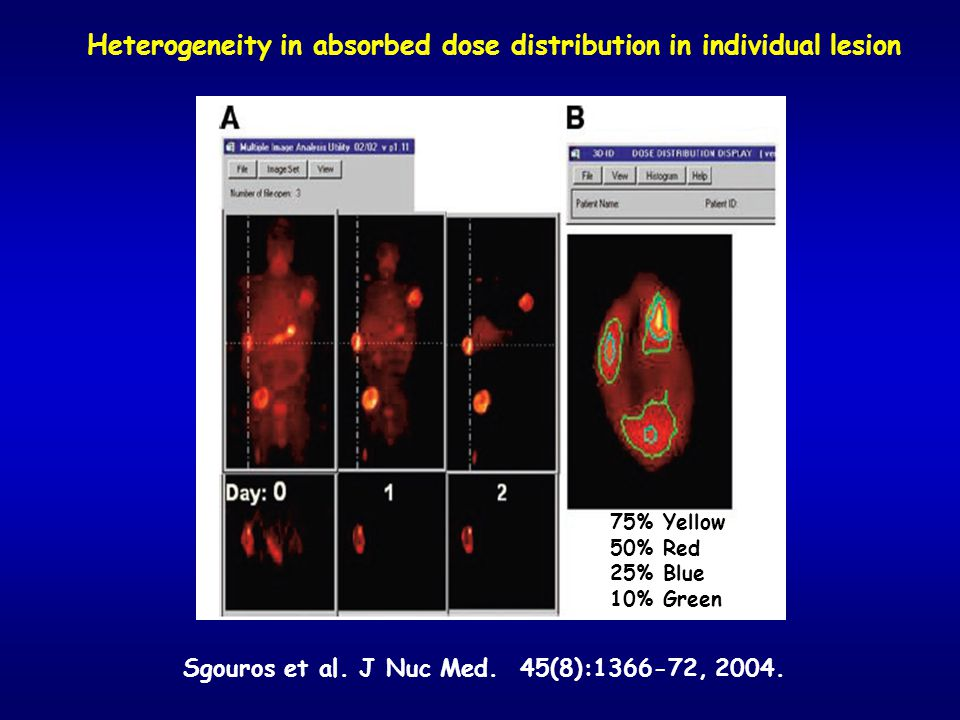 Heterogeneity in absorbed dose distribution in individual lesion