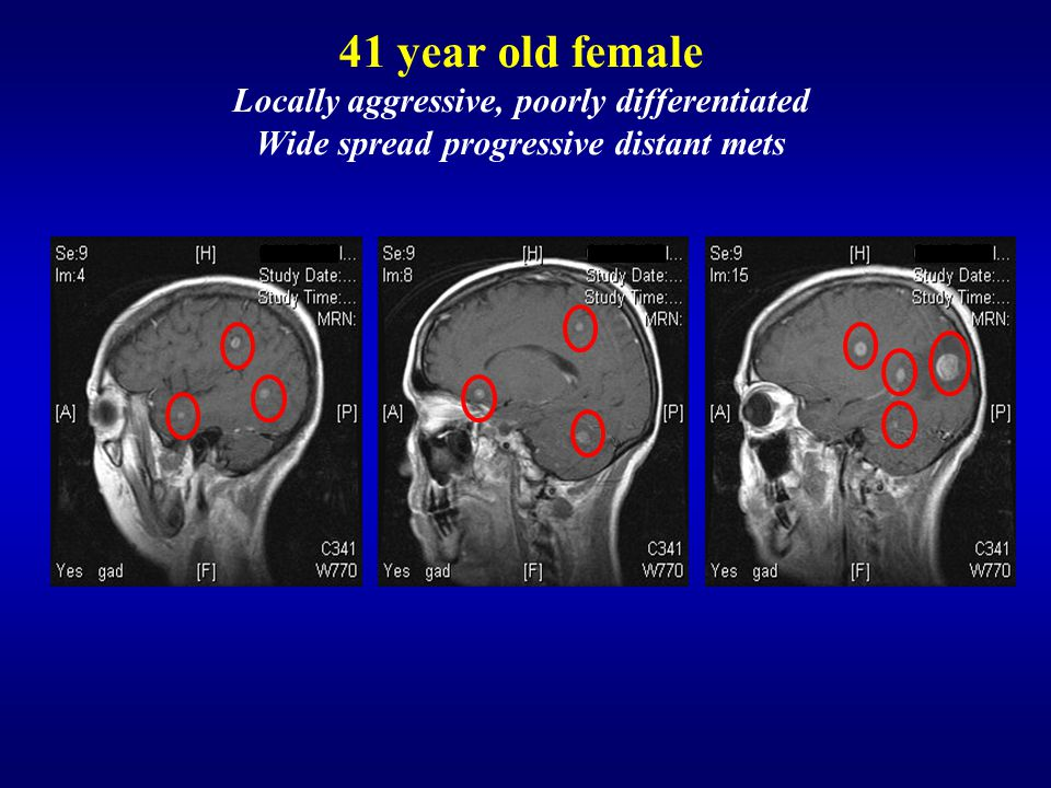 41 year old female Locally aggressive, poorly differentiated Wide spread progressive distant mets