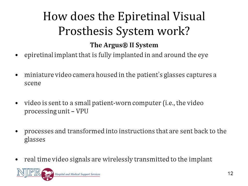 How does the Epiretinal Visual Prosthesis System work
