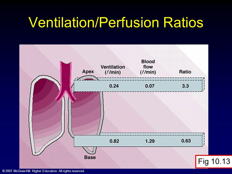 Ventilation/Perfusion Ratios