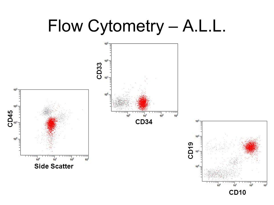 Flow Cytometry – A.L.L. CD33 CD45 CD34 CD19 Side Scatter CD10