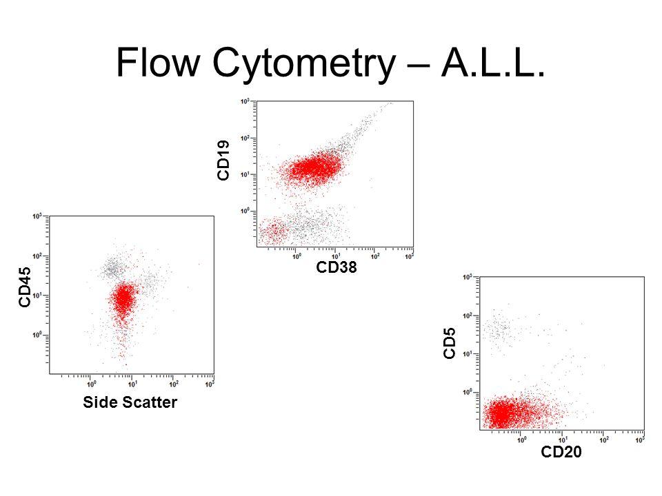 Flow Cytometry – A.L.L. CD19 CD38 CD45 CD5 Side Scatter CD20