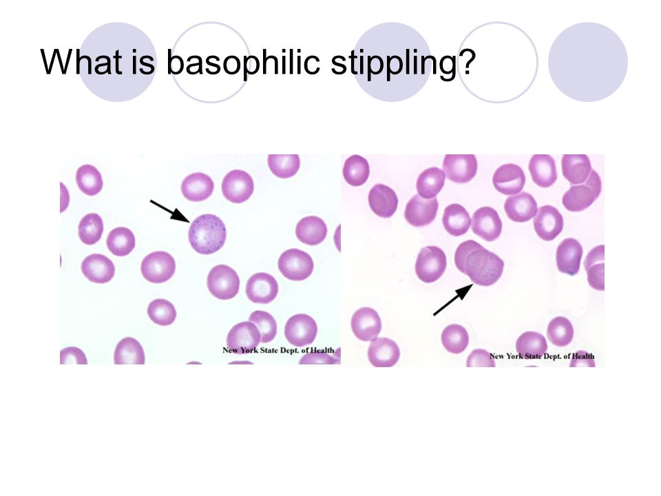 What is basophilic stippling