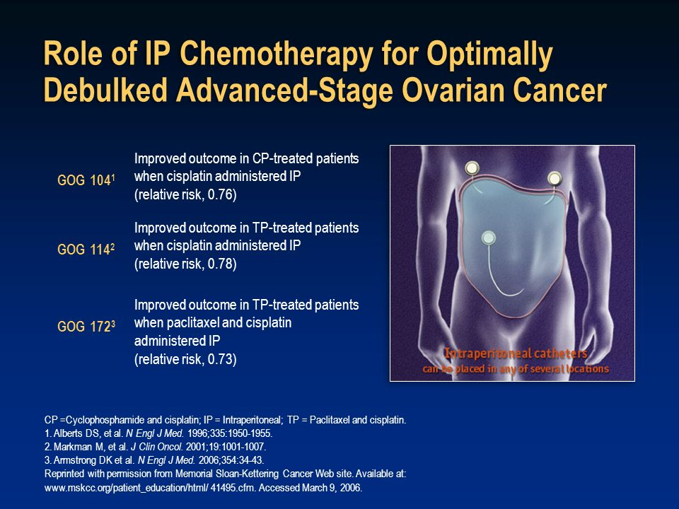 Role of IP Chemotherapy for Optimally Debulked Advanced-Stage Ovarian Cancer
