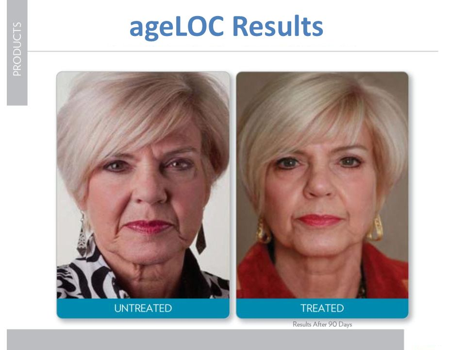 ageLOC Results