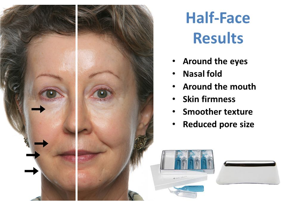 Half-Face Results Around the eyes Nasal fold Around the mouth