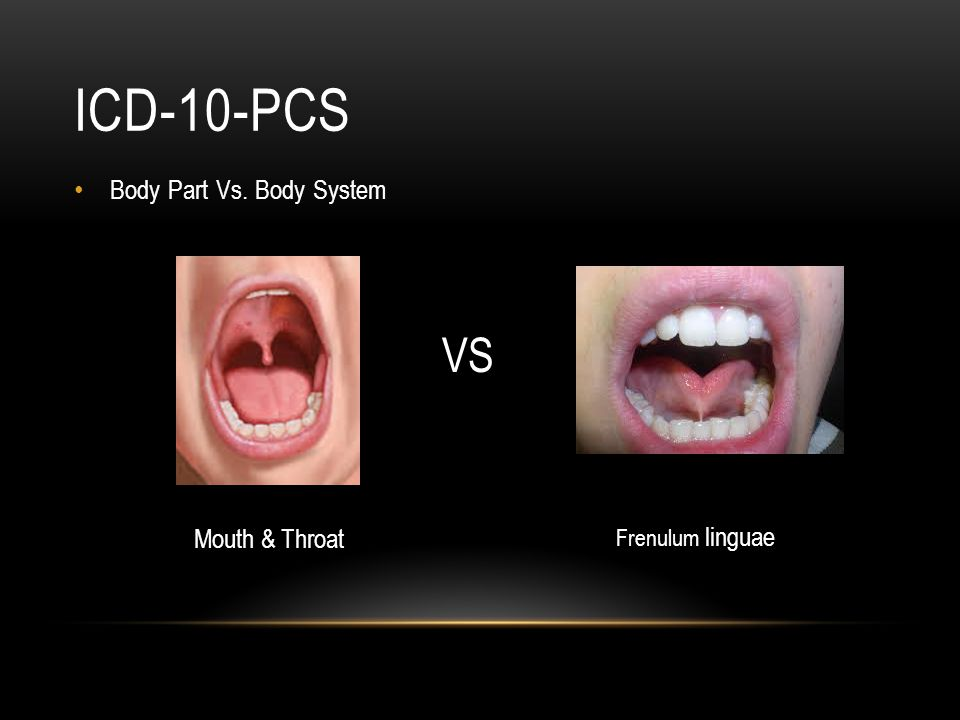 ICD-10-PCS VS Body Part Vs. Body System Mouth & Throat