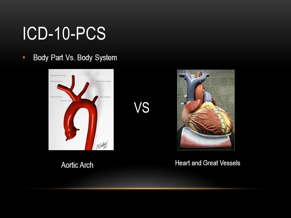 ICD-10-PCS VS Body Part Vs. Body System Aortic Arch