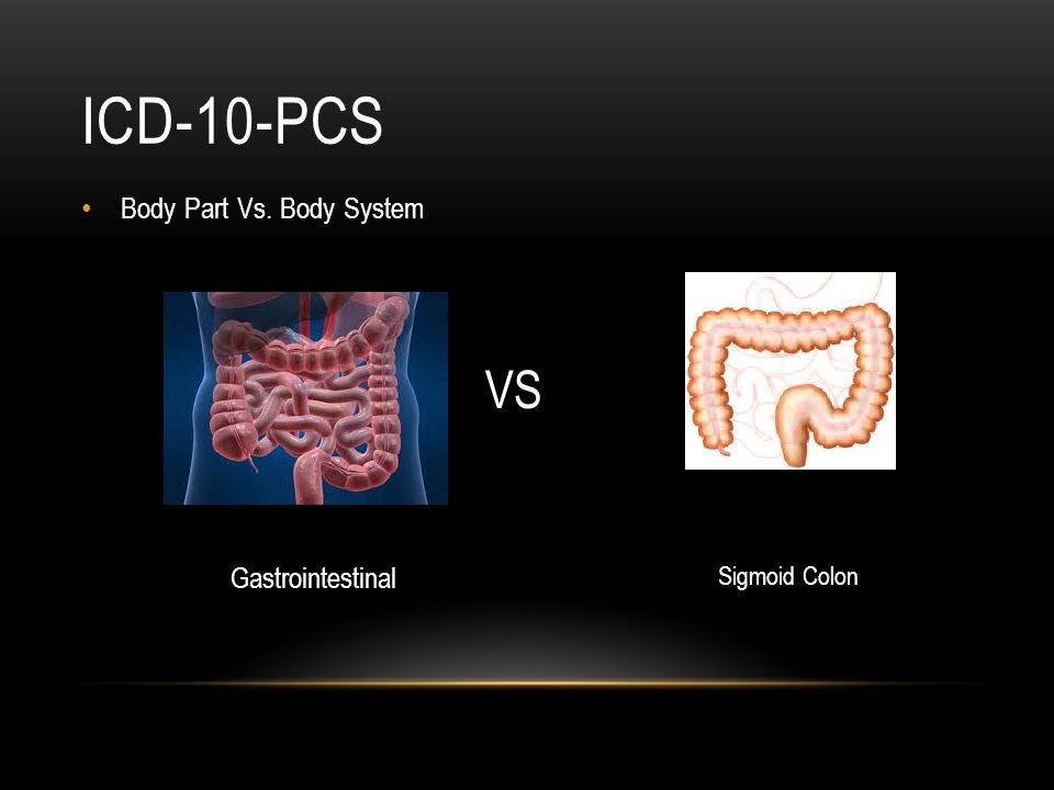 ICD-10-PCS Body Part Vs. Body System VS Gastrointestinal Sigmoid Colon