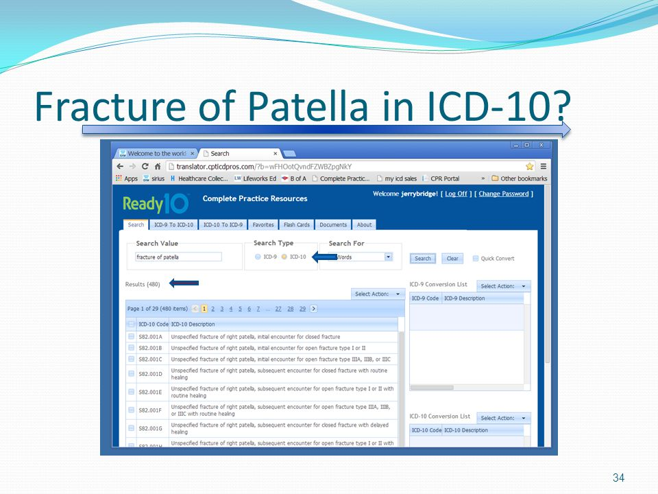 Fracture of Patella in ICD-10