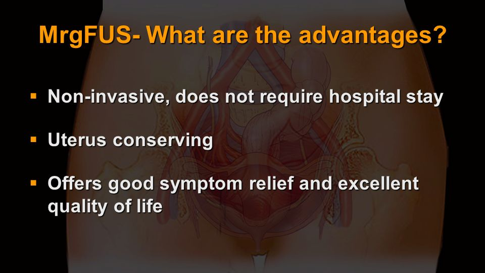 MrgFUS- What are the advantages