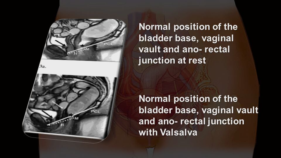 Normal position of the bladder base, vaginal vault and ano- rectal junction at rest