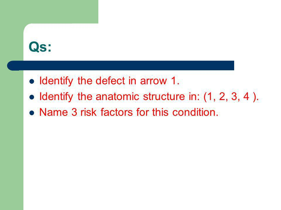 Qs: Identify the defect in arrow 1.