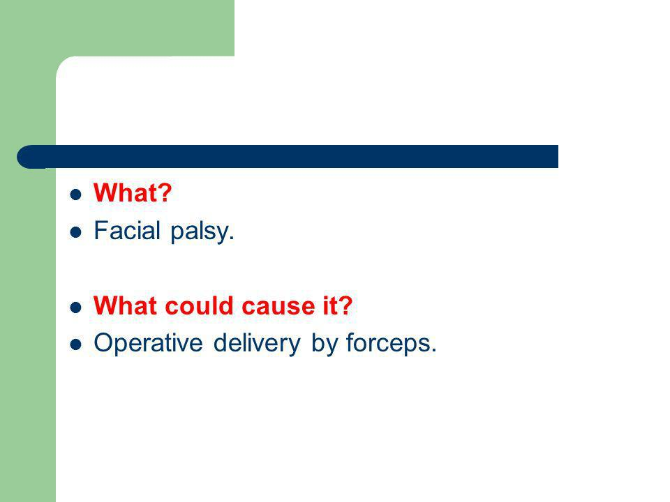 What Facial palsy. What could cause it Operative delivery by forceps.