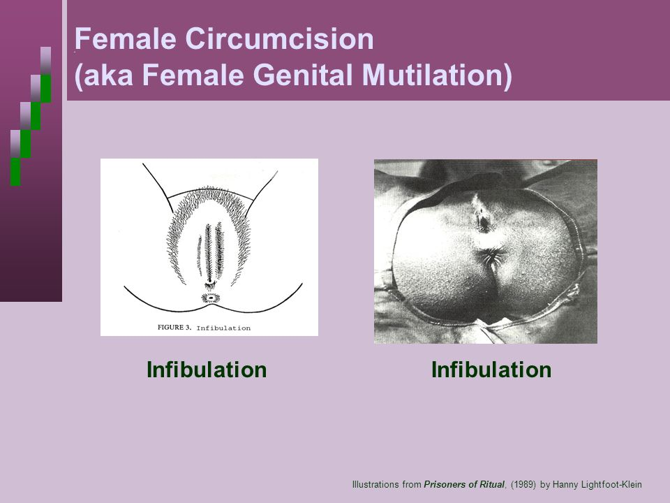 (aka Female Genital Mutilation)
