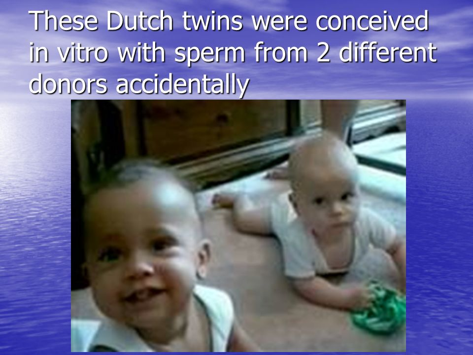 These Dutch twins were conceived in vitro with sperm from 2 different donors accidentally