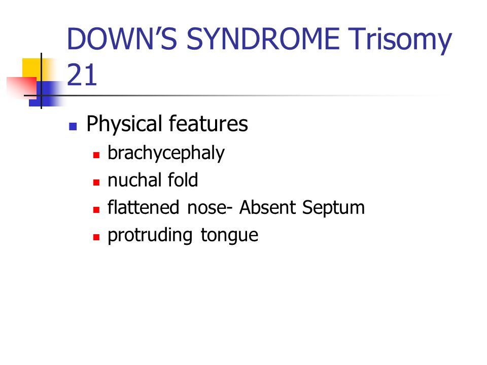 DOWN'S SYNDROME Trisomy 21