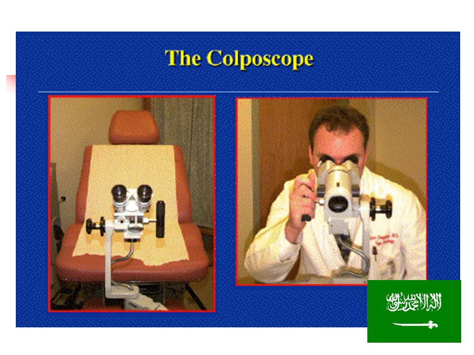 1920 colposcopy 1930 was used in Europe. USA. ACCSP. SHORT FOCAL LENGTH CAN NOT DO BIOPSY. LONG FOCAL LENGTH NOT COMFORTABLE PERFORM BIOPSY.