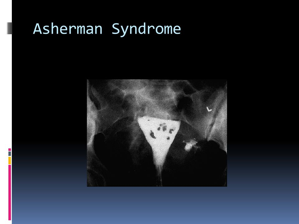 Asherman Syndrome