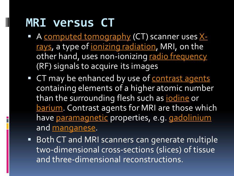 MRI versus CT
