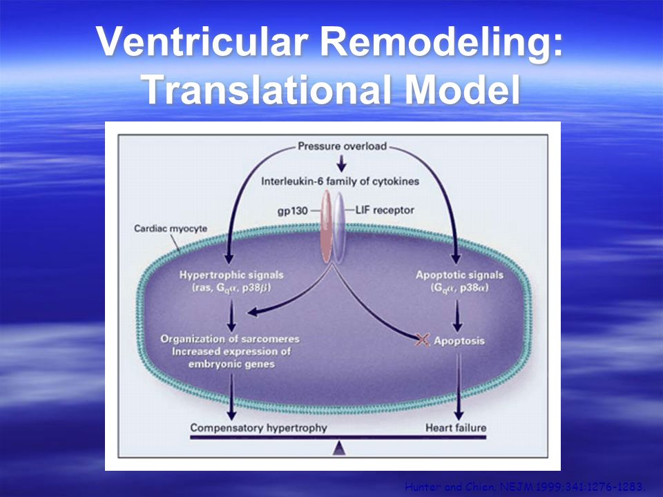 Ventricular Remodeling: Translational Model