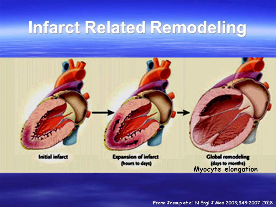 Infarct Related Remodeling