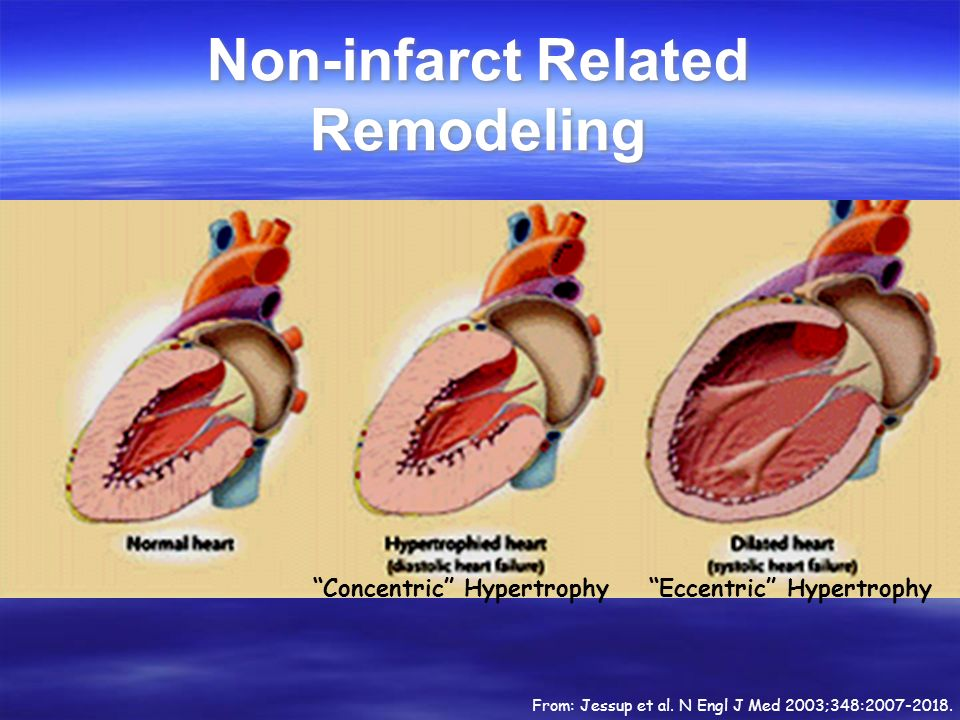 Non-infarct Related Remodeling