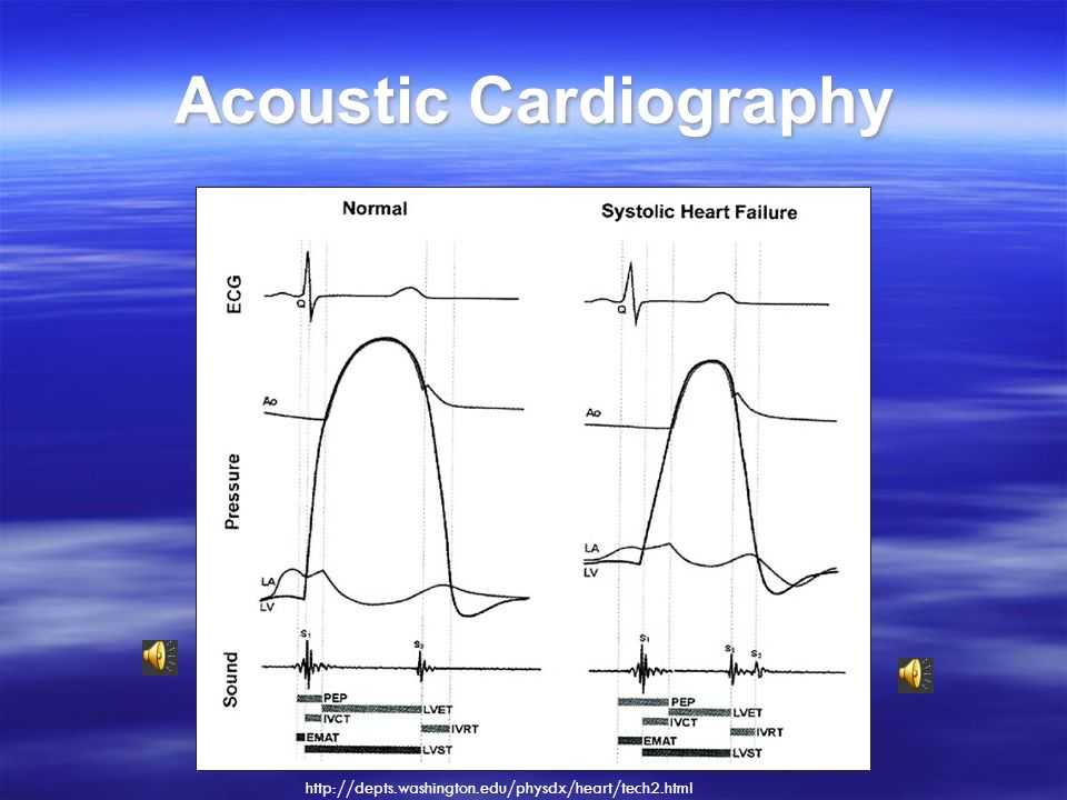 Acoustic Cardiography