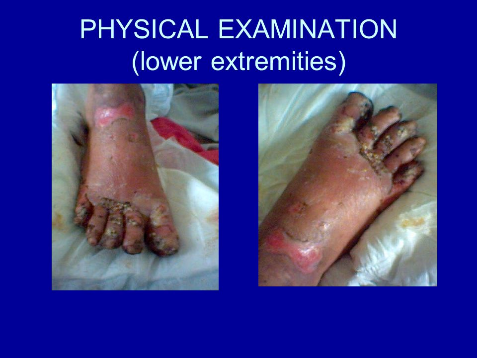 PHYSICAL EXAMINATION (lower extremities)