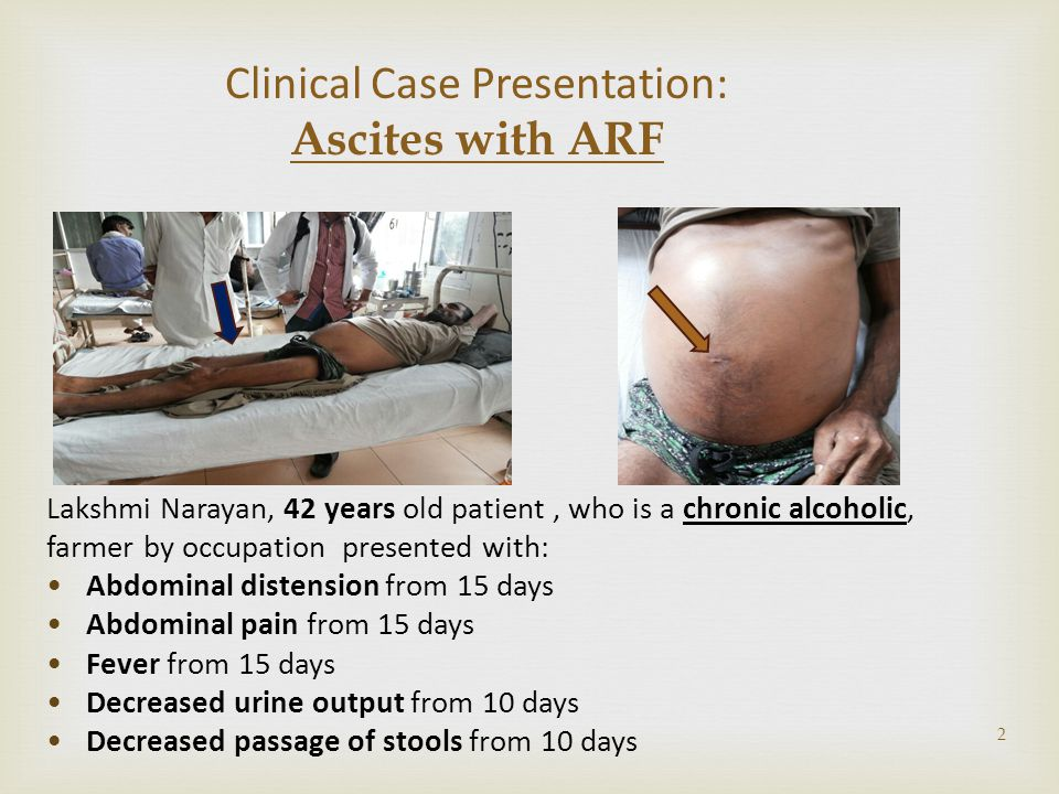 Clinical Case Presentation: Ascites with ARF