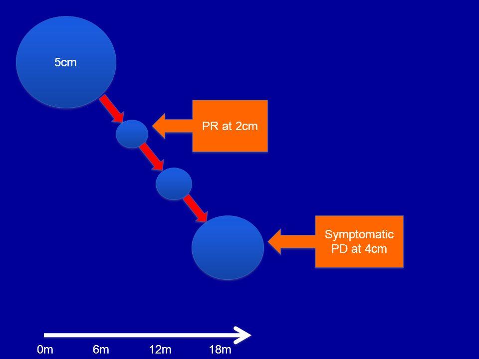 5cm PR at 2cm Symptomatic PD at 4cm 0m 6m 12m 18m