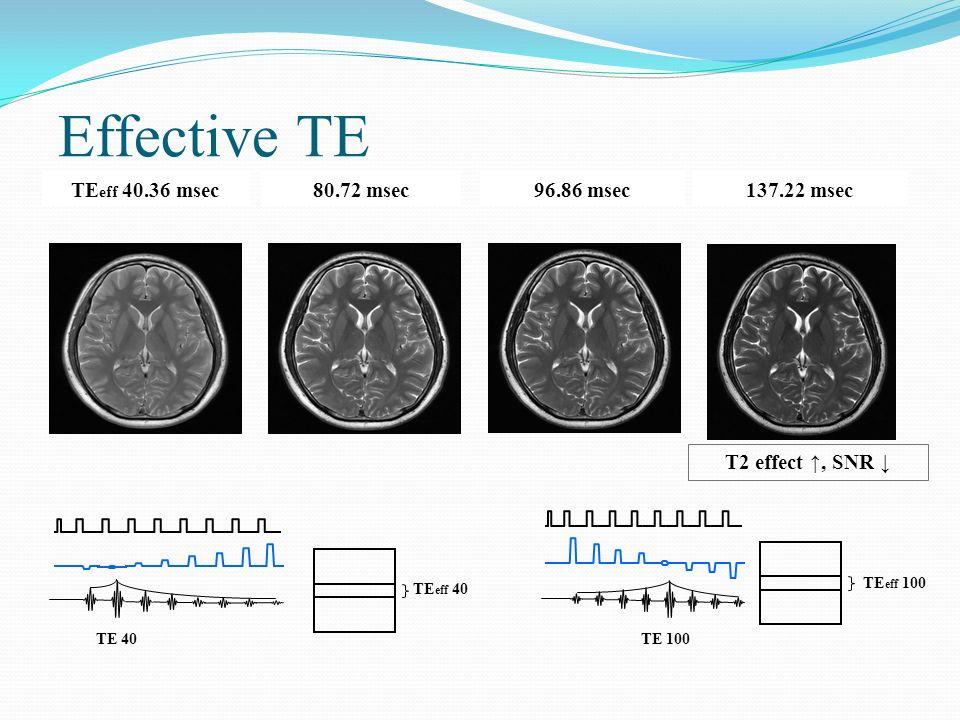 Effective TE TEeff 40.36 msec 80.72 msec 96.86 msec 137.22 msec