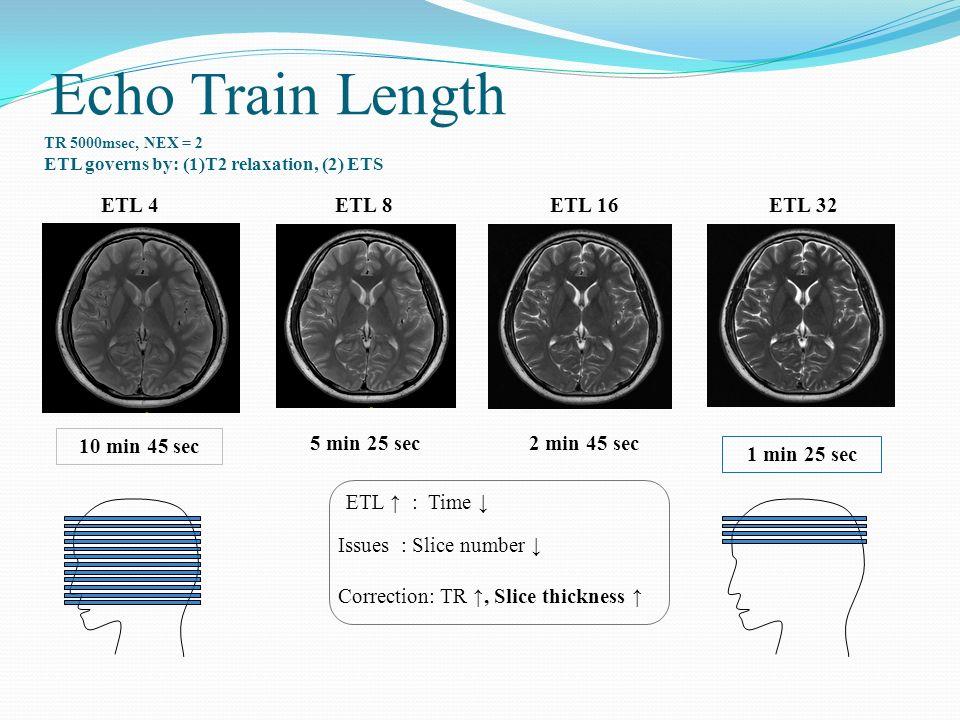 Echo Train Length ETL 4 ETL 8 ETL 16 ETL 32 10 min 45 sec 5 min 25 sec