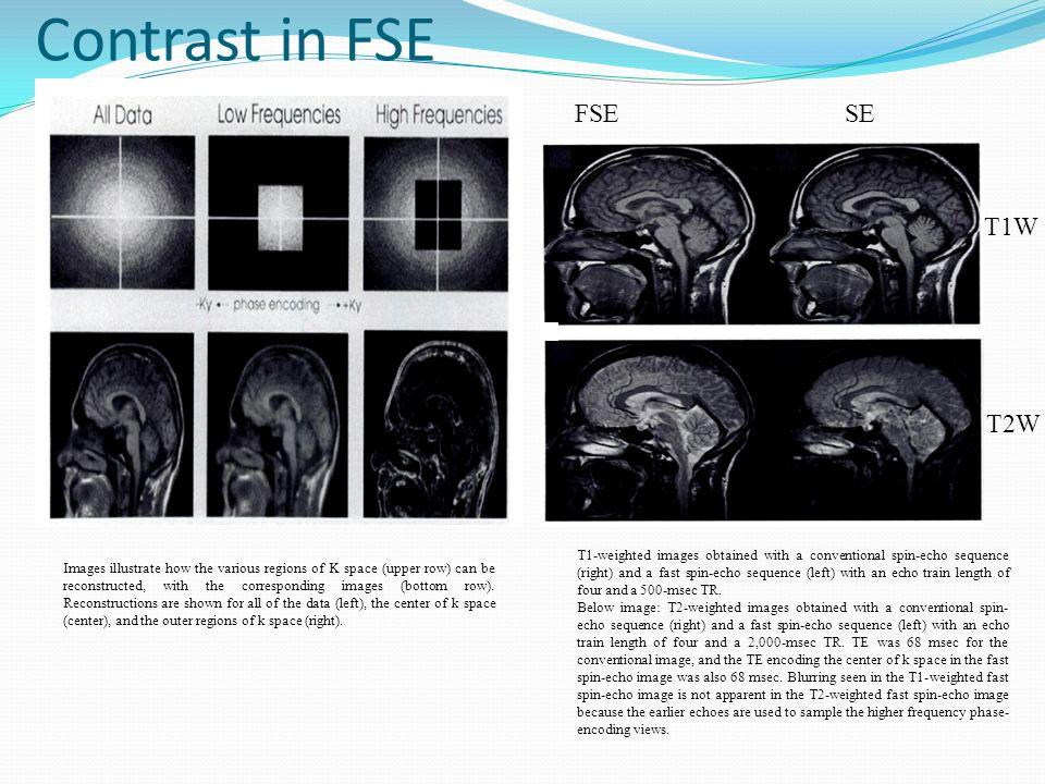 Contrast in FSE FSE SE T1W T2W
